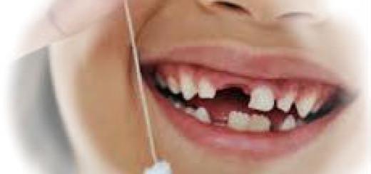 Сонник - сломанный зуб,зубы выпали