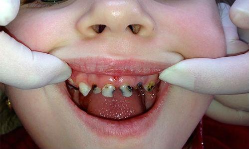 Гнилые зубы толкование сонника