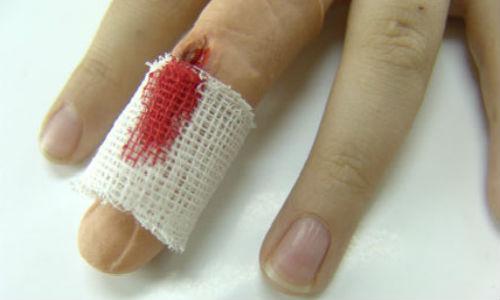 сонник рана