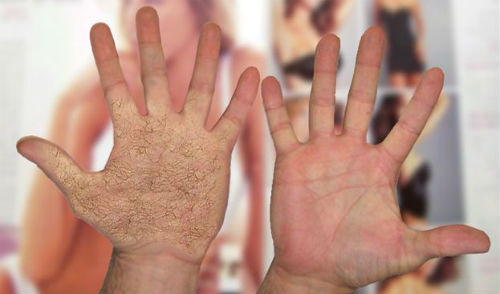 Волосатые руки толкование сонника