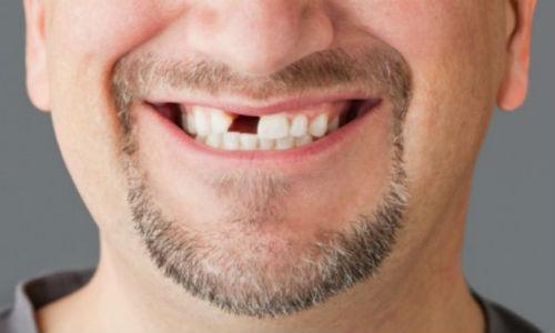 Фото К чему снится зуб с кровью