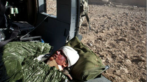 раненый солдат во сне
