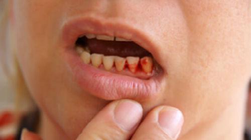 зубы с кровью и без во сне