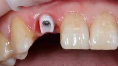 сломался зуб без крови