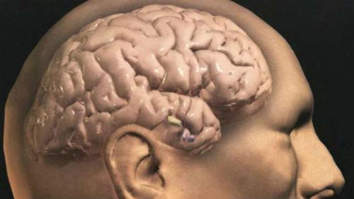 к чему снится опухоль мозга