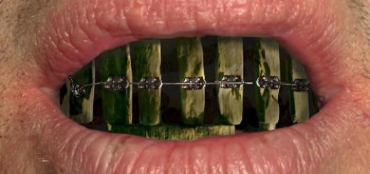 к чему снятся черные зубы во рту