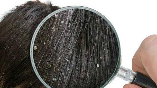 перхоть в волосах