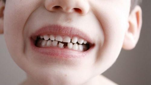 снятся детские зубы