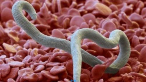 глисты в теле человека