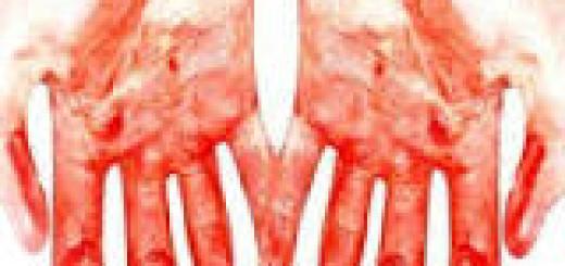 сонник кровь на руках
