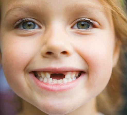 выпадают зубки