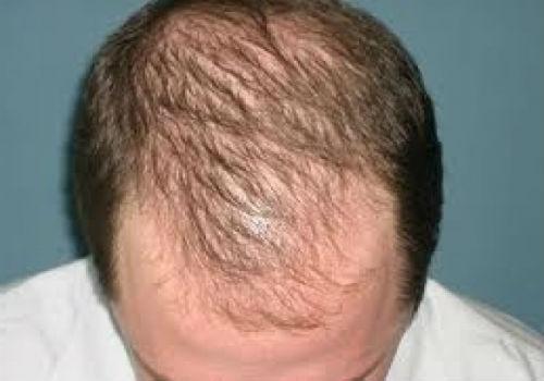 Витамины и шампуни от выпадения волос