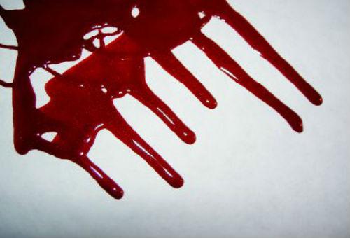 к чему снится кровь месячные