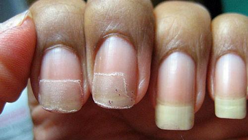 Если снятся грязные ногти