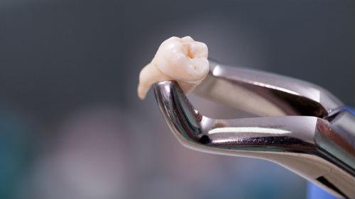 вырвать зуб без боли