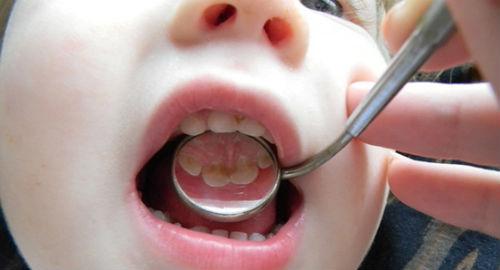 У ребенка болит зуб под временной пломбой