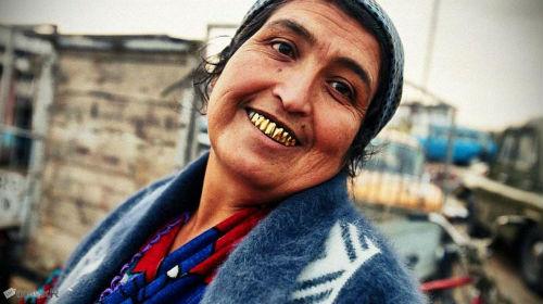 Мне приснились золотые зубы