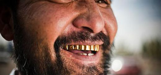 золотые зубы во сне