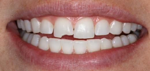 к чему снится что крошатся зубы