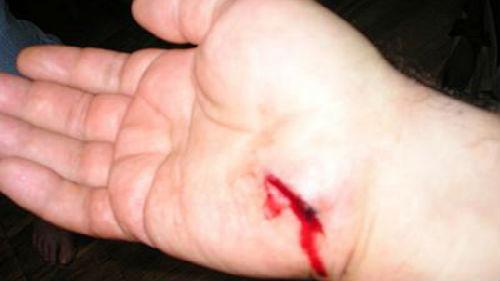 порез ножом во сне