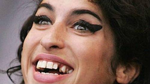 к чему снится потеря зуба