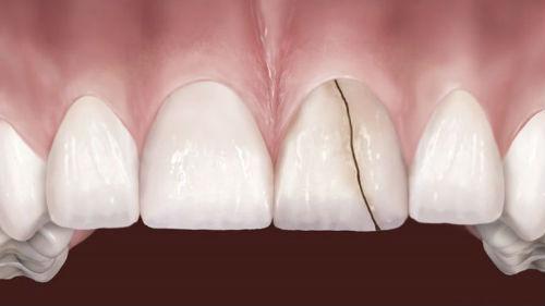 приснилось треснул передний зуб