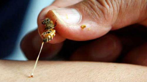 к чему снится укус пчелы в спину