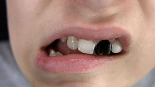 выпал один зуб без крови