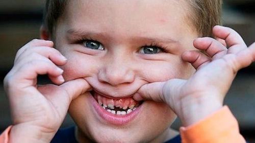 гнилые зубы с дырками