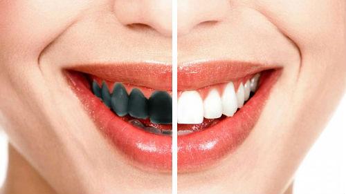 черные зубы свои во сне