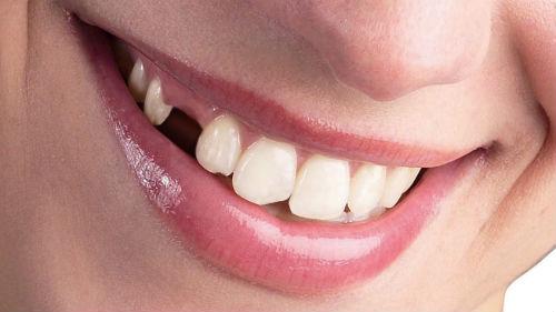 К чему сниться сломавшийся зуб