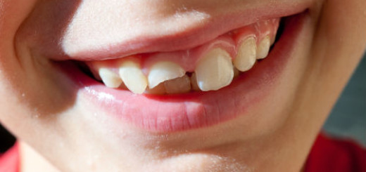сломанный зуб во сне