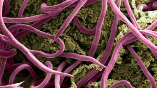 длинные черви в теле