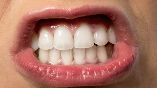 к чему снятся белые красивые зубы