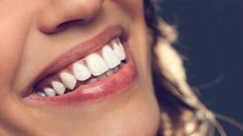 чистая улыбка