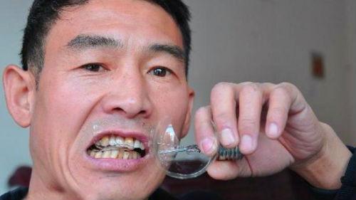 видеть осколки в зубах