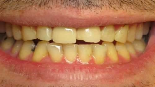 видеть плохие зубы у мужа