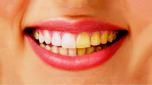 желтые зубы во сне
