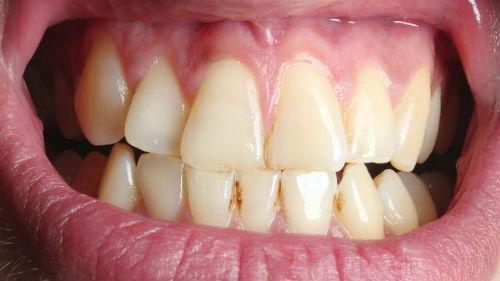 к чему снятся желтые зубы