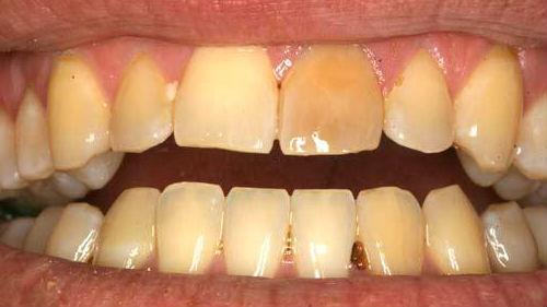 разваливающиеся зубы