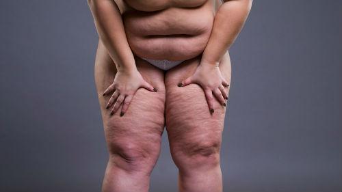 видеть свои жирные ноги